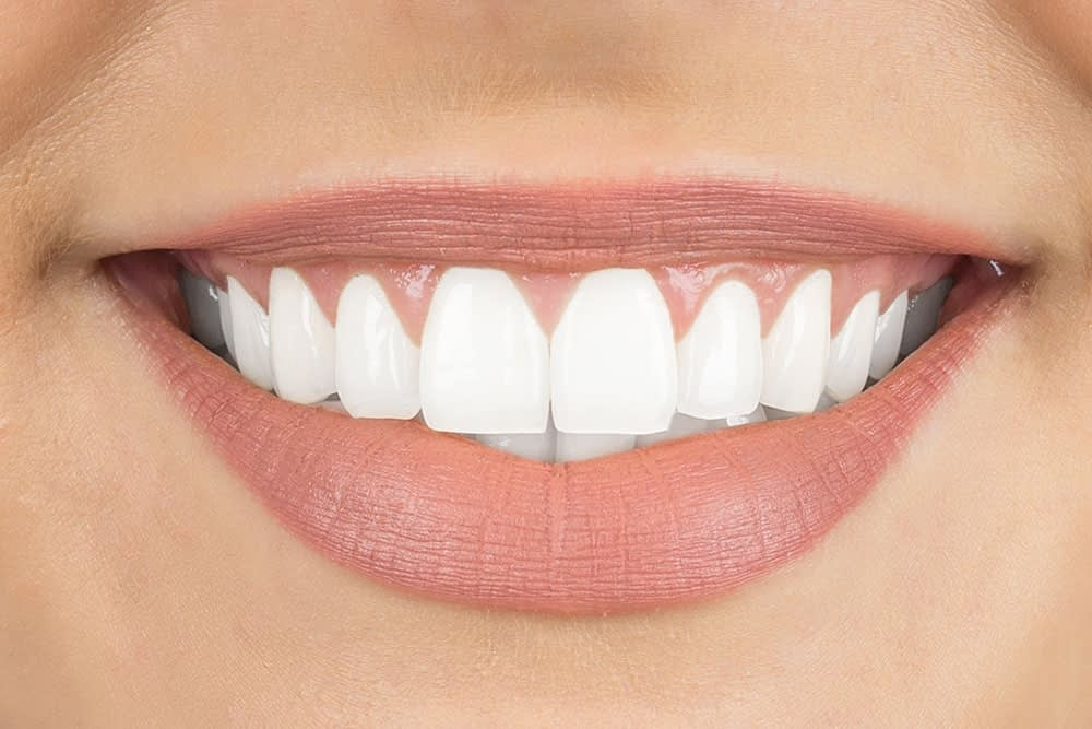 Veneers Are The Most Cost-Effective Way To A More Beautiful Smile